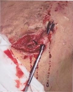 Silicone Scar Wound